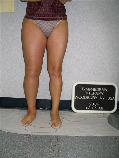 Lymphedema Leg Swelling Image Before Treatment Mine Is