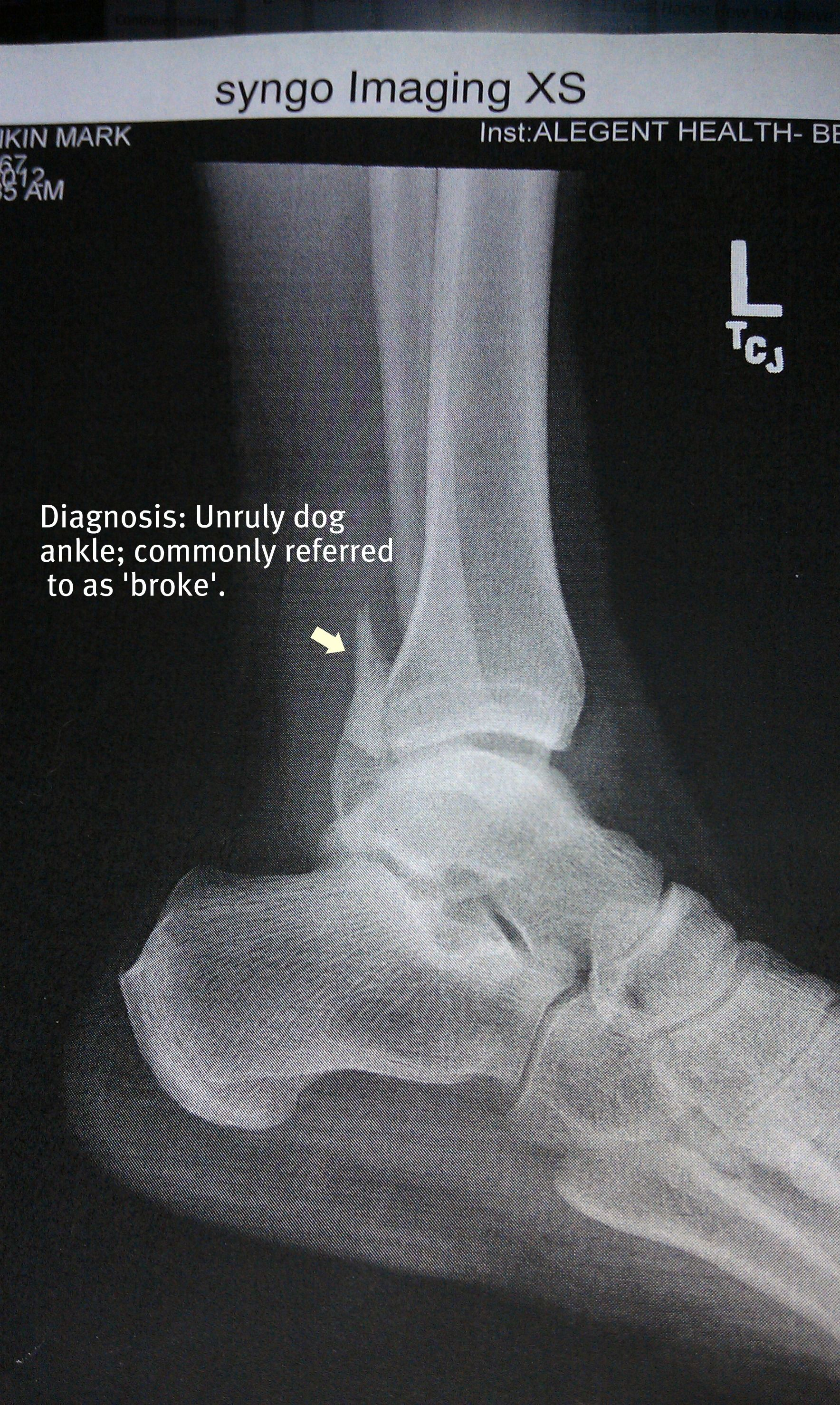 how to tell if your foot/ankle is broken