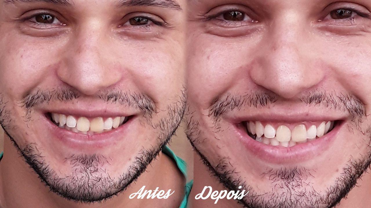 Bicarbonato De Sodio Sera Que Deixa Os Dentes Mais Brancos Com