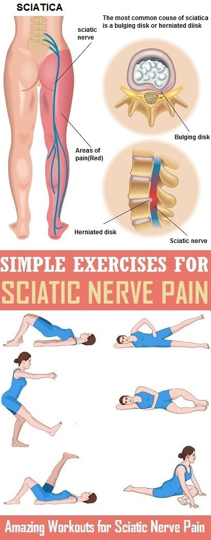 8 Most Effective Exercises For Sciatic Nerve Pain