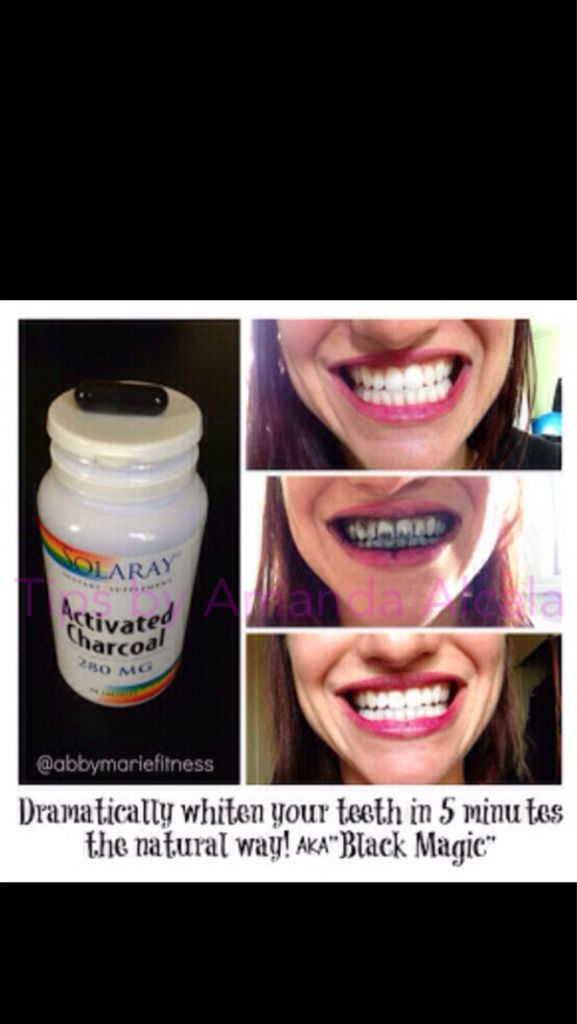 Dramatically Whiten Your Teeth In 5 Minutes Tipit Teeth