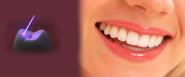 كيفية تبييض الاسنان بأستخدام الليزر Doctor