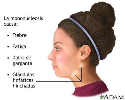 Fatiga dolor de cabeza dolor de cabeza