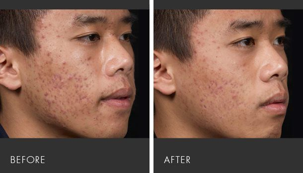 Pin On Acne Vulgaris Treatment