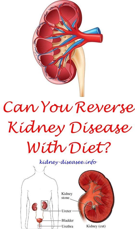 Kidney Disease Symptoms Fatty Liver   Kidney disease, Kidney stones ...