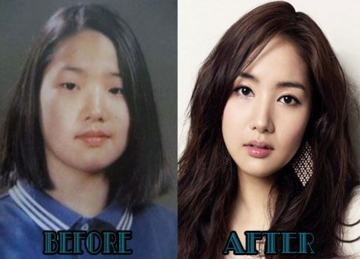 korean celebrities plastic surgery | plastic surgery before and
