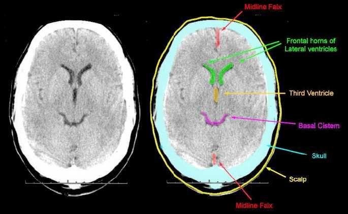 Image result for basal cisterns | Medical School | Pinterest ...