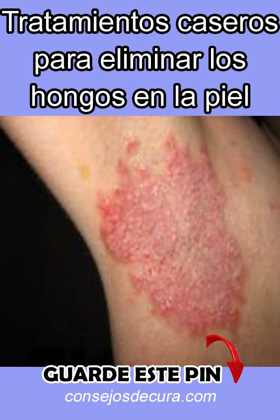 Hongos en la piel tratamiento casero