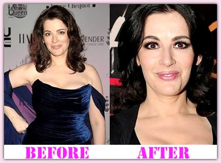 Nigella Lawson Before And After