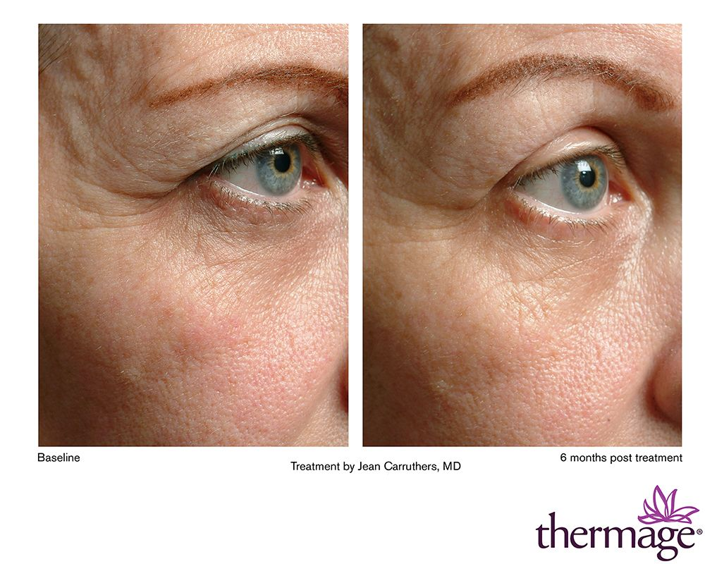 Thermage - Augenbehandlung / Augen Lifting www.aestheso.de ...