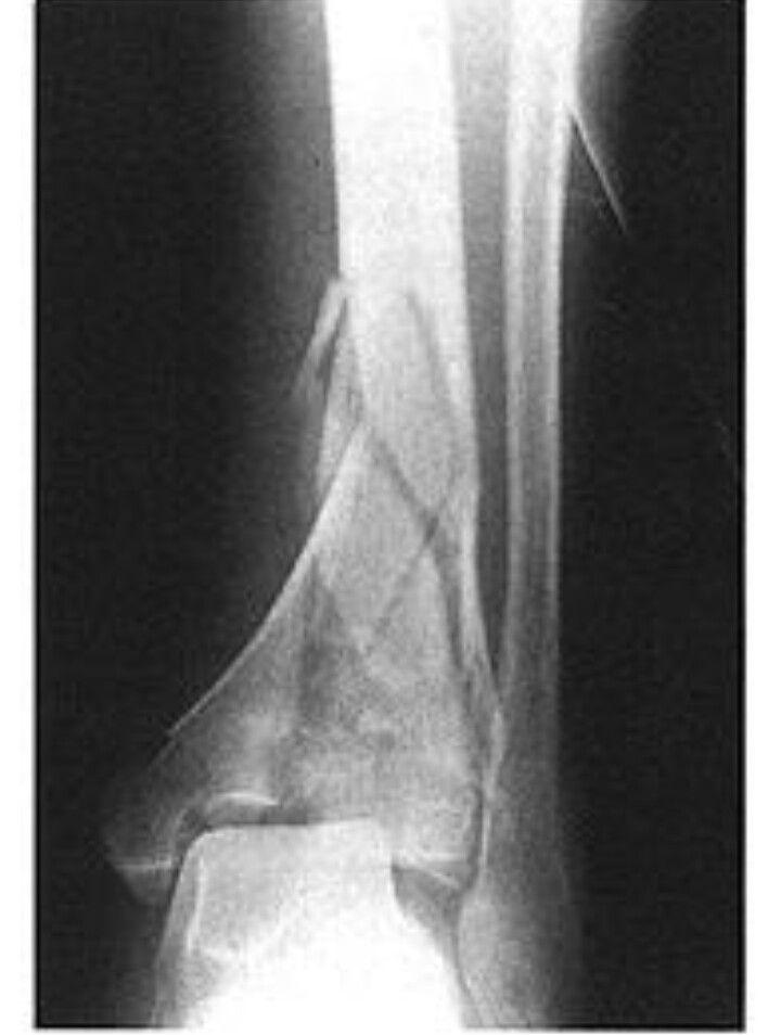 Fractura conminuta | PAUX SISTEMA musculoesqueletico (2°trimentre ...