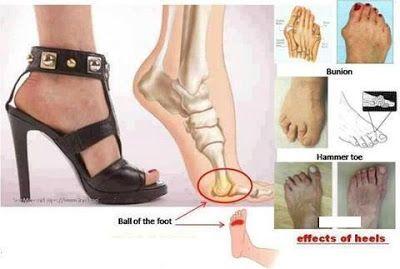 Effects of wearing high heels