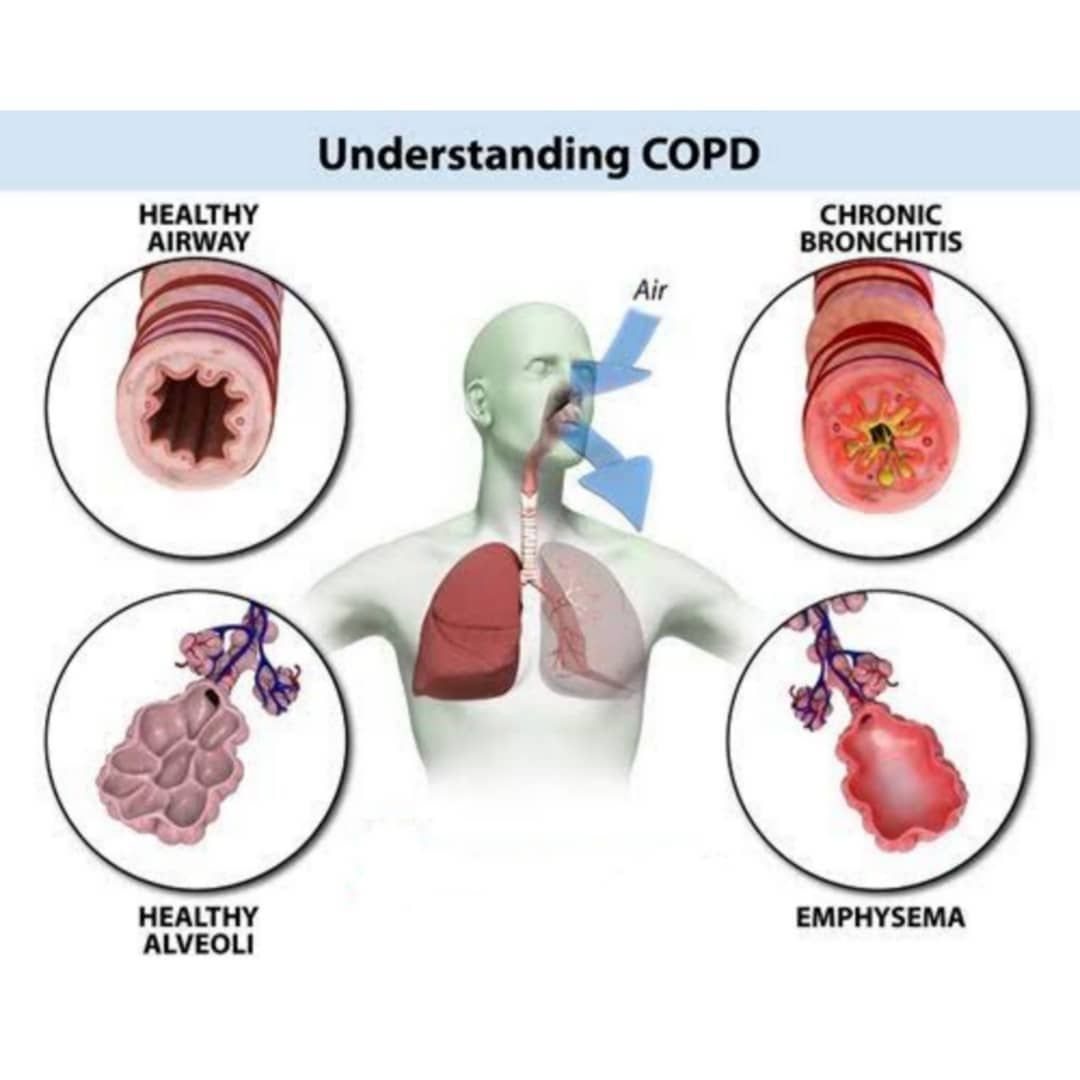 Chronic Obstructive Pulmonary Disorder (COPD): Chronic obstructive  pulmonary disease (COPD) is a chronic inflammatory lung disease that causes  obstructed airflo…