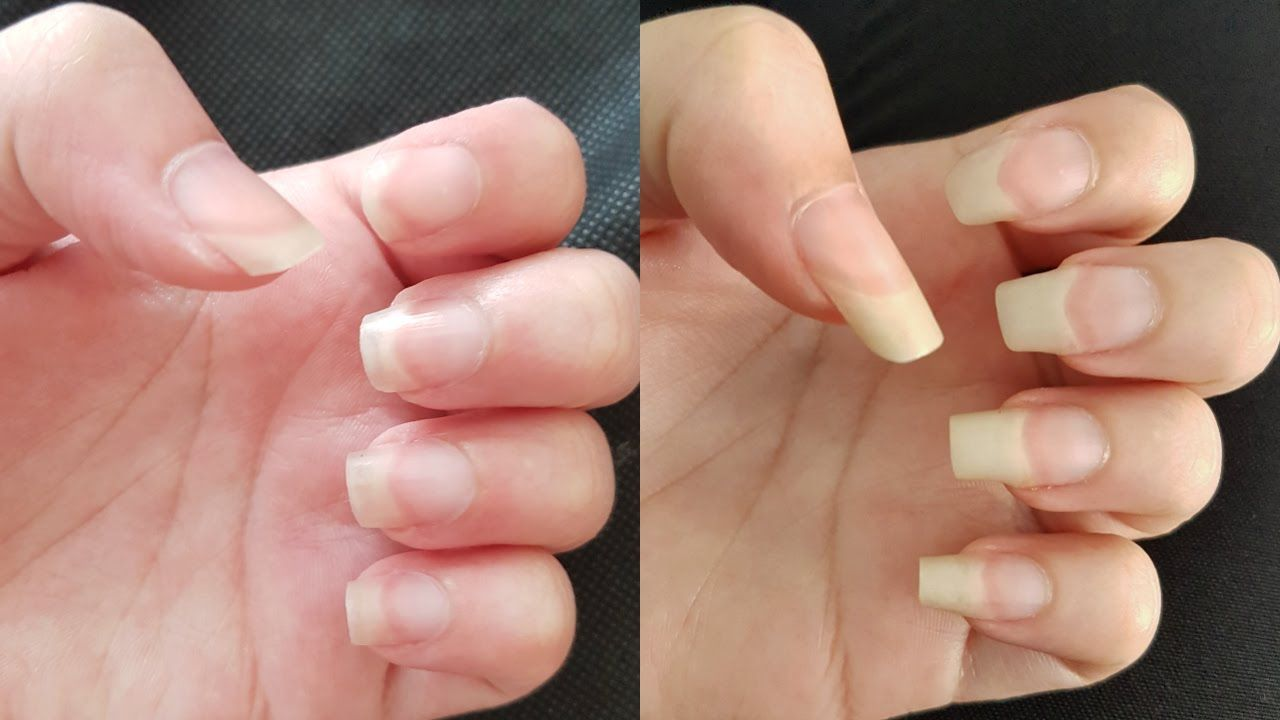 HOW TO GROW YOUR NAILS FAST IN A WEEK | Beauty with natural ...