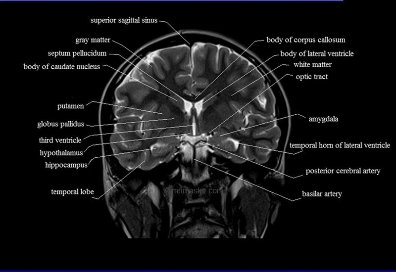 Anatomy of brain mri