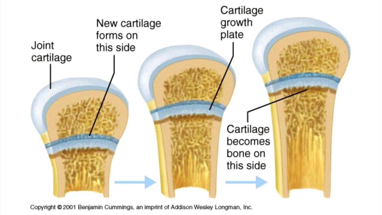 Grow Taller - I - Height Increase - Epiphyseal Plate Opening - Bone ...