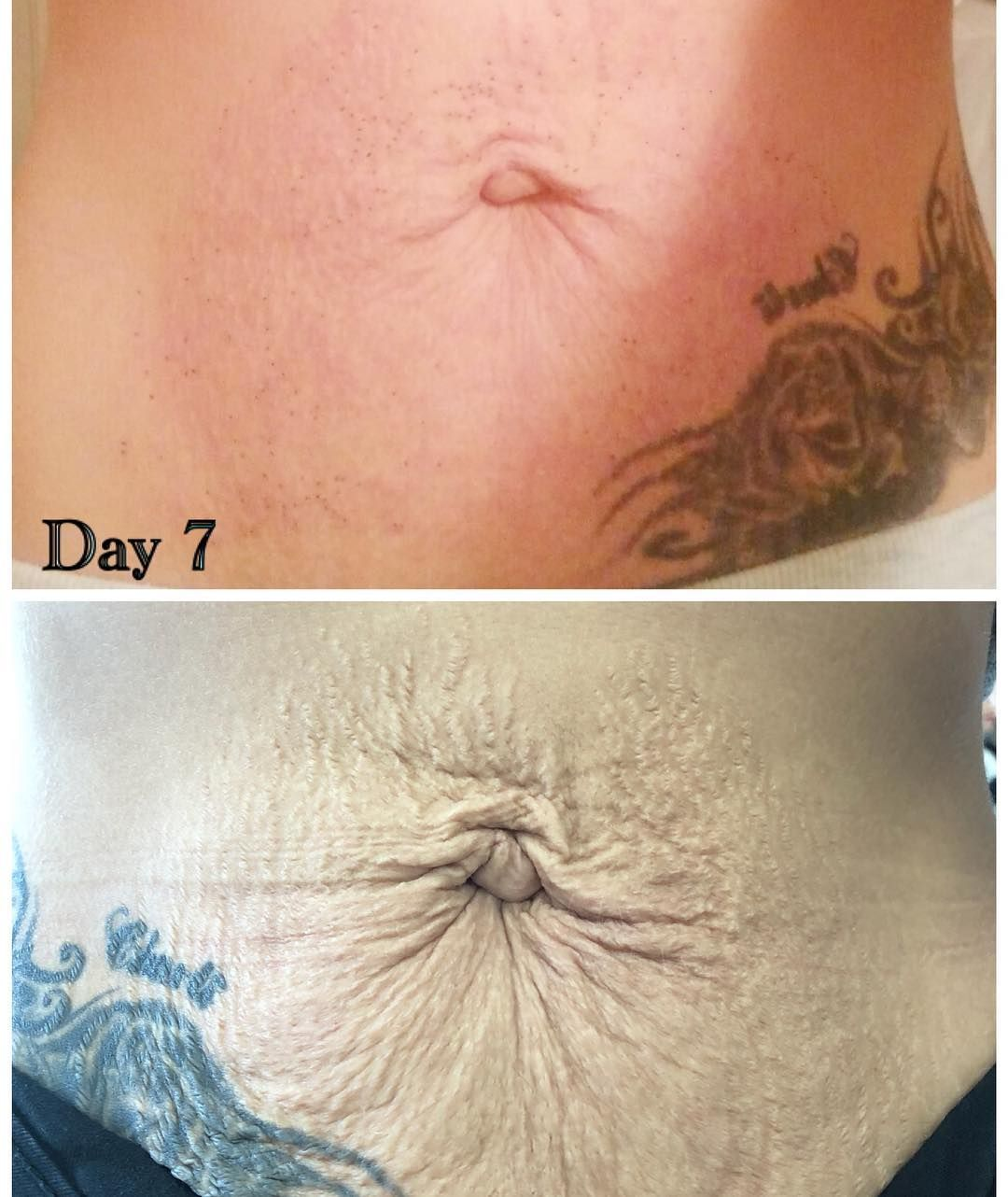 Plasma/ Fibroblasts healing journey day 7 #plasma
