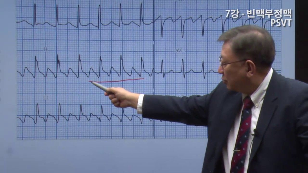 '부정맥에의 접근' (Approaches to pts with arrhythmias) #7 빈맥 Tachycardia