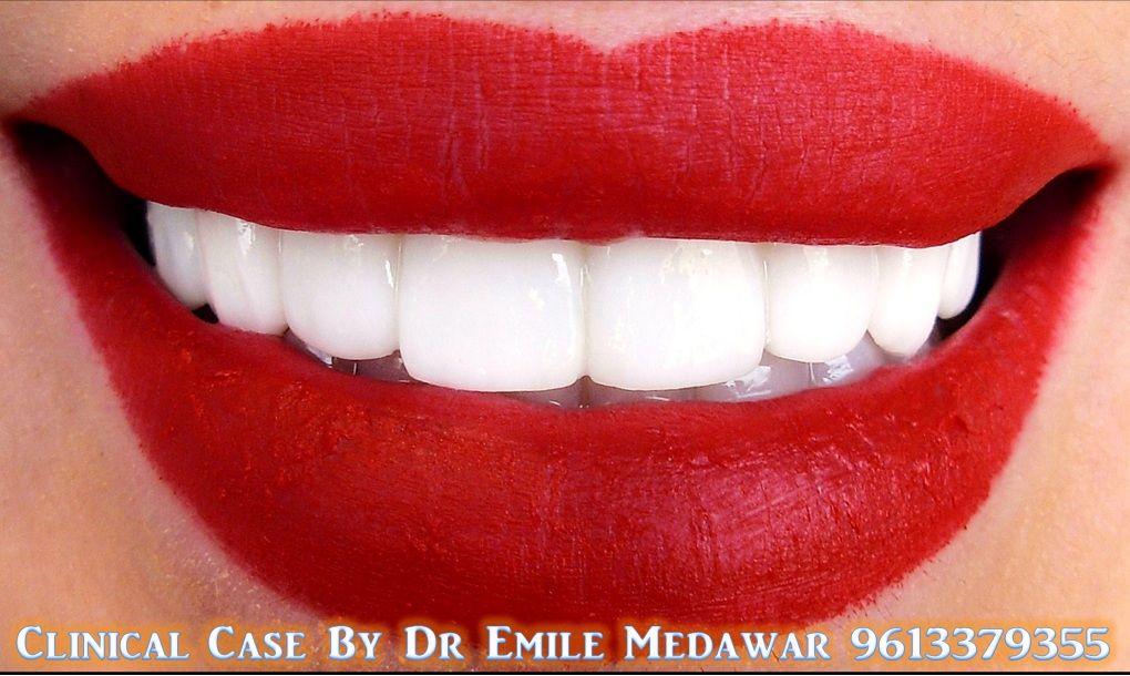 #hollywoodsmile #dentist #Lebanon #beirut #plasticsurgery #teethwhitening #emilemedawar #veneers #lumineers #dentist #dentalclinic