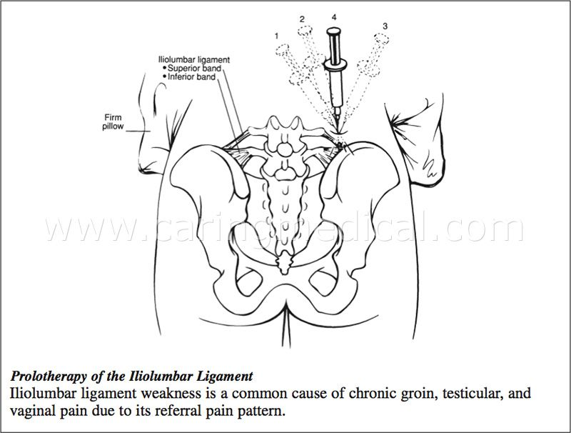 Iliolumbar Ligament Injection