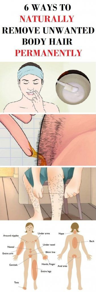 how to get rid of body hair permanently