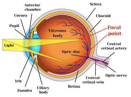 What Is Astigmatism And Can It Be Fixed Lasikplus Astigmatism Health Ledger Healthy Eyes