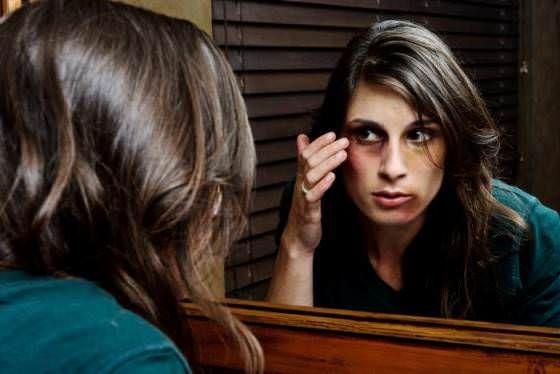 1d3ed108c9bf9b4b79f46f1d26e1ec74 - How To Get Rid Of Bruises On Face Overnight