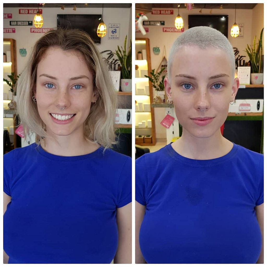 List Of Pinterest Balding Women Before And After Images Balding