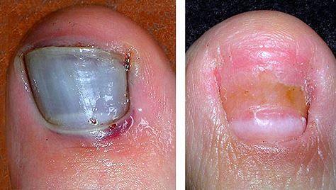 What Causes Bruised Toenails