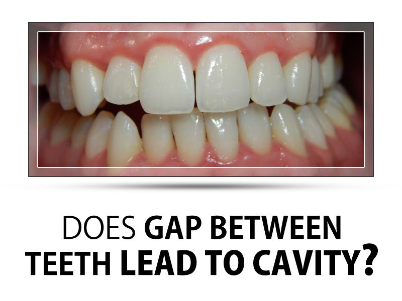 If You Have A Small Gap Between Your Teeth And Can T Clean It You Re More Likely To Develop Tooth Decay The Dental Health Care Dental Specialist Stained Teeth