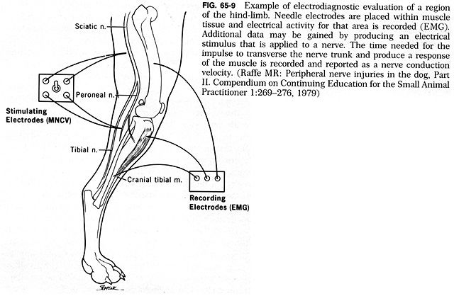 sciatic nerve placement