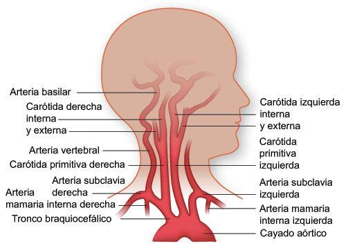 Dolor de cuello parte superior de la cabeza
