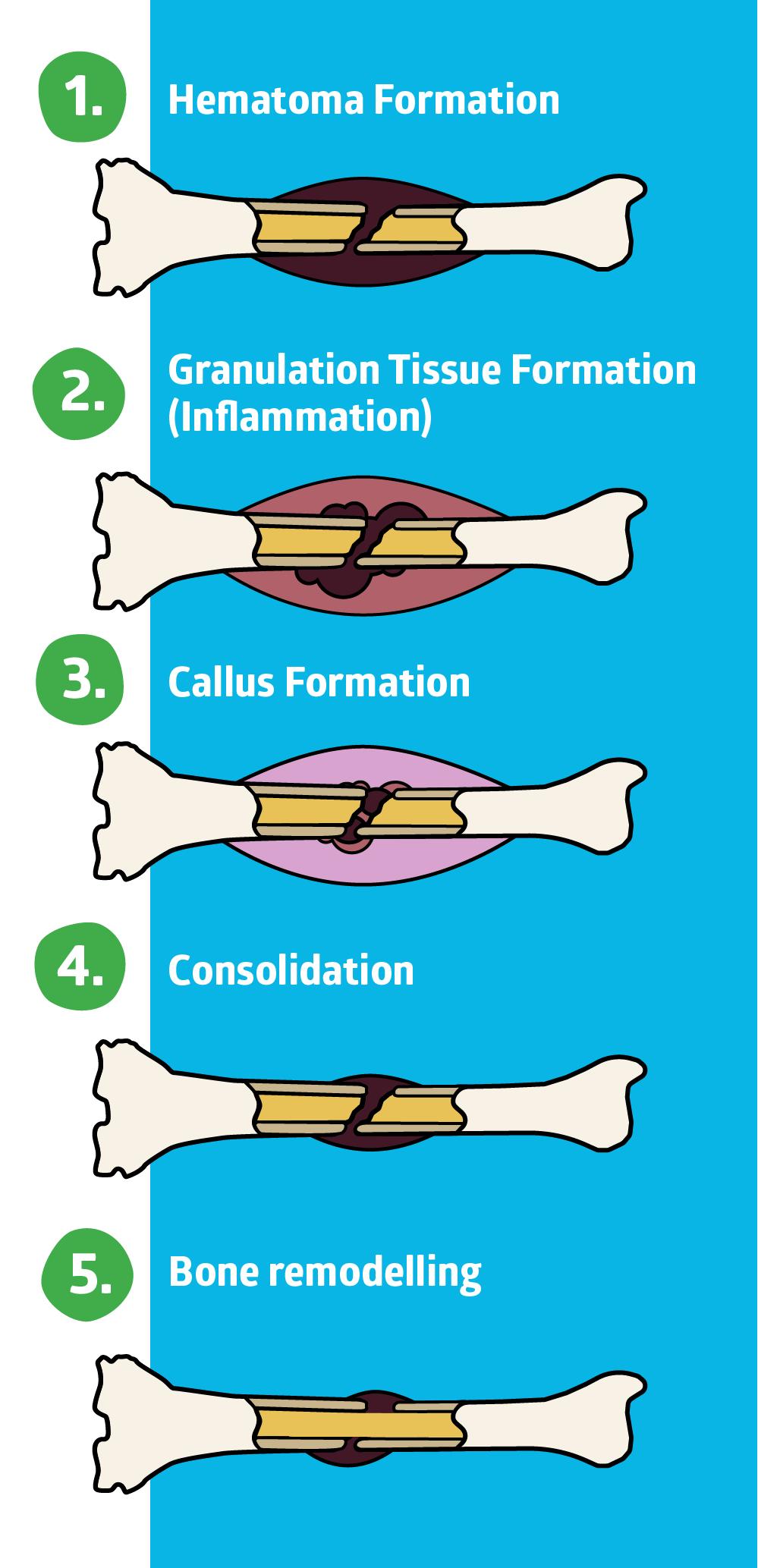 Bone Fracture Healing Supplements Do They Work