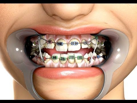 Braces rubber bands positions for sexual health