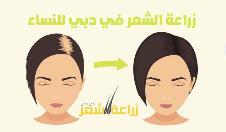 زراعة الشعر في دبي للنساء الشعر هو تاج النساء وتساقط الشعر يسبب الكثير من المشاكل النفسية والكثير من المشاكل الأخ Ways To Grow Hair Grow Hair Back Hair Control