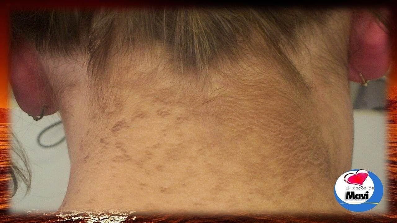 decoloraciones comunes de la piel y diabetes