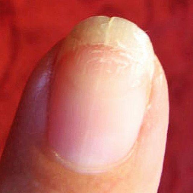light black line on fingernail - 640×640