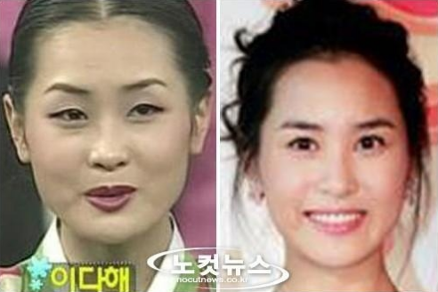 13 Korean Celebrities Who Have Admitted To Plastic Surgery Korean Celebrities Plastic Surgery Celebrities