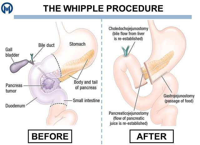 Related Image Whipple Procedure Nursing Notes Medical Surgical