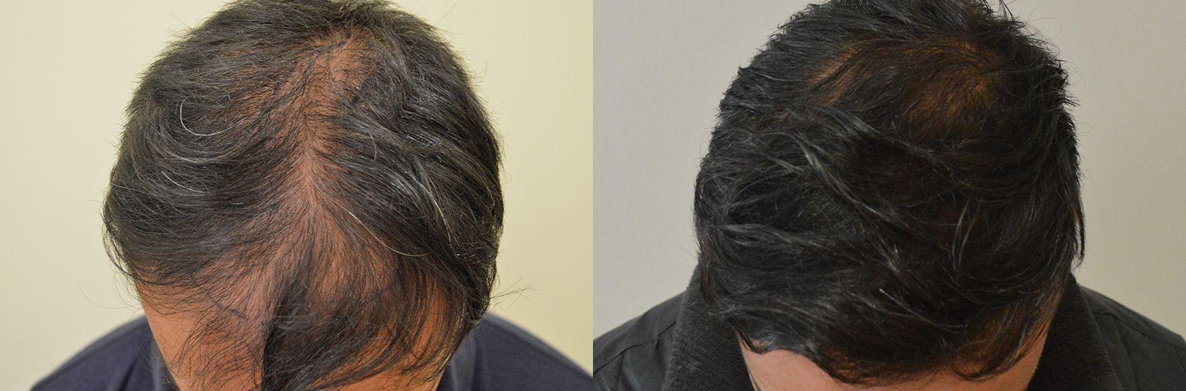 trapianto capelli FUE b4640444a6b5