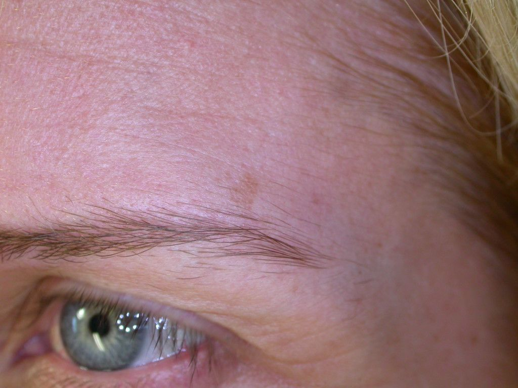 Raised Age Spots On Skin See what can be done for age spots on