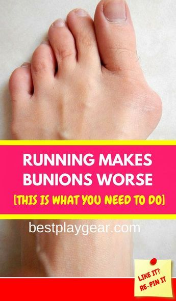 Running makes bunions worse. Should you stop running? This is what you need to do... #run #runningti...