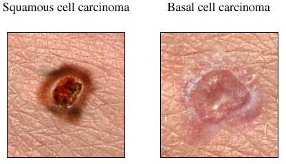 basal cell vs squamous cell carcinoma