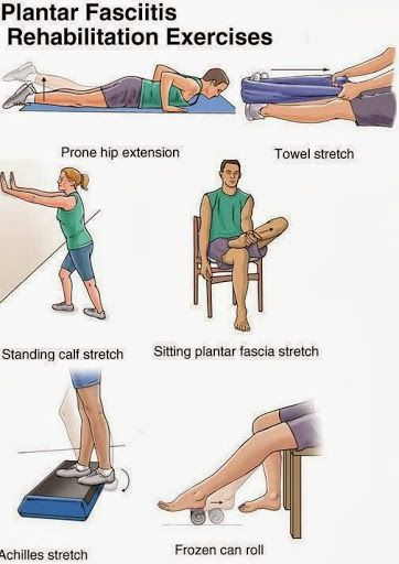 41++ What is the best exercise for plantar fasciitis inspirations