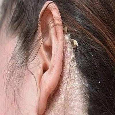seborrheic dermatitis ears