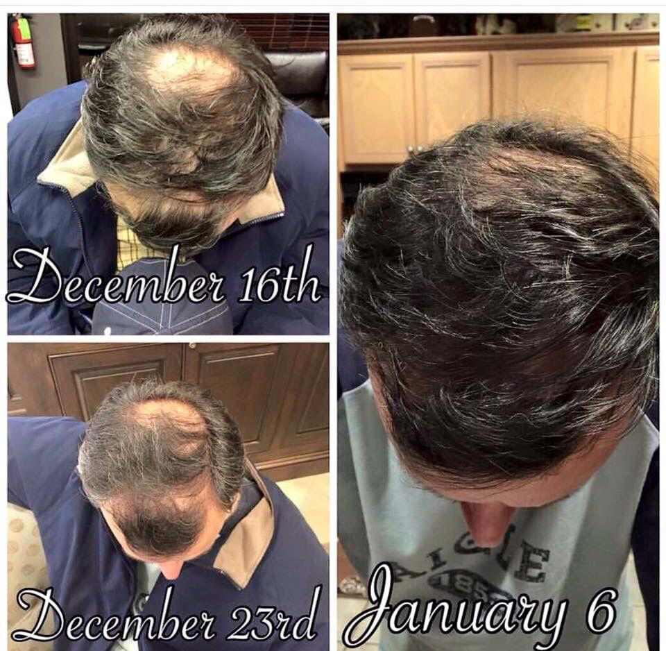 Say Goodbye To Male Pattern Baldness Www Sloanmcnulty Mymonat Com