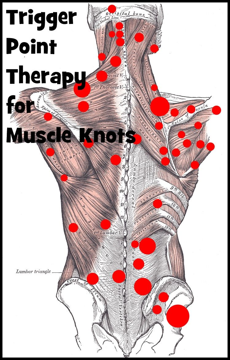 Effective Trigger Point Therapy for Muscle Knots | Massage and ...
