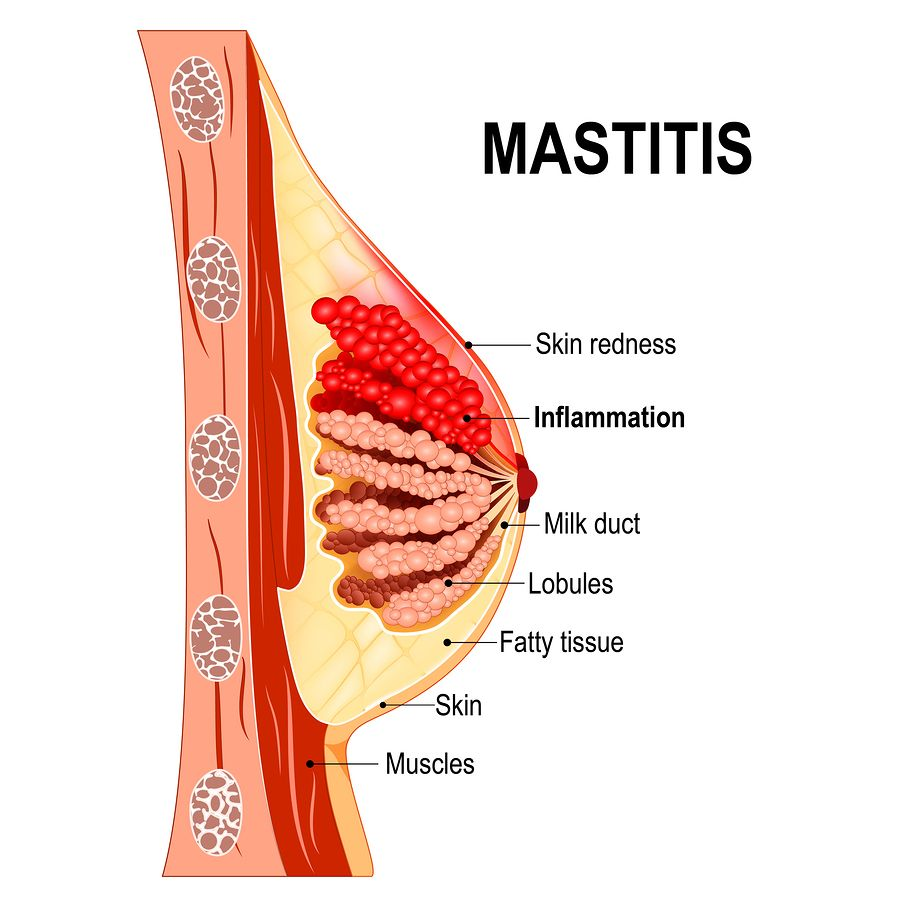 The Causes Of Mastitis And How To Treat It Effectively -2434