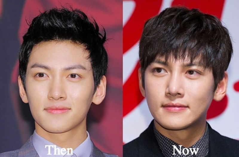 Ji Chang-wook Before and After Plastic Surgery | Plastic ...