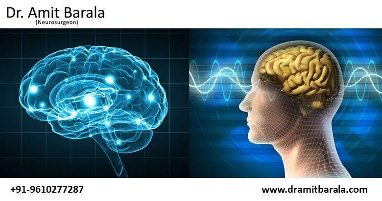 Top Best Neurologist in Jaipur